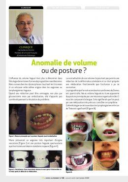 anomalie de volume ou de posture linguale visuel
